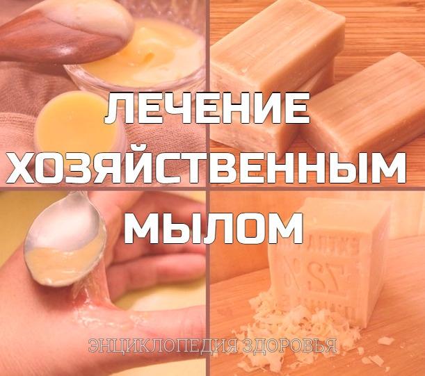 лечение хозяйственным мылом